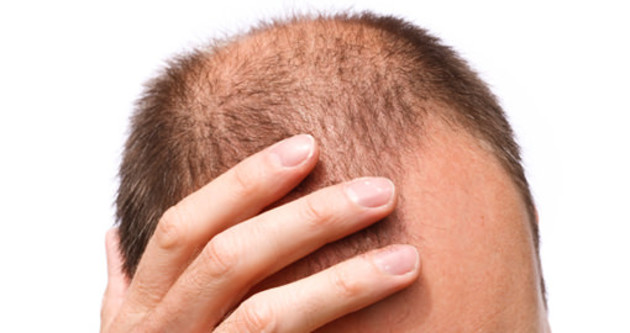 Saç dökülmesine nanoteknolojili çözüm