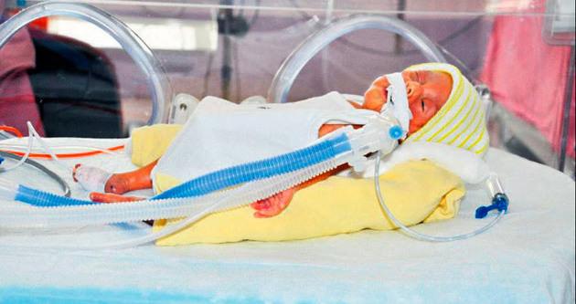 Anne karnındaki ikizlere 11 kez kan nakli yapıldı