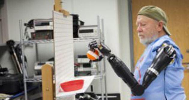 İki kollu olmayan hastaya robot protez takıldı!