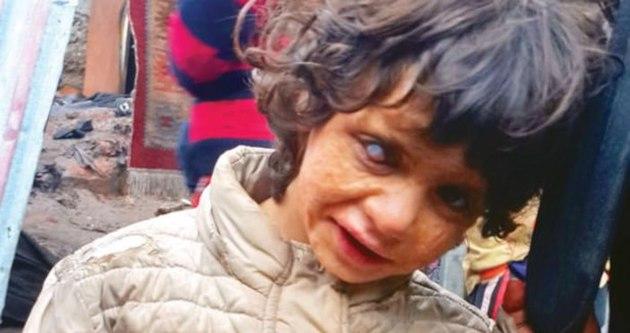 Suriyeli Sümeyye ameliyat bekliyor