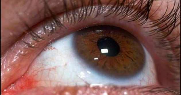 Bu hastalıklar körlüğe neden oluyor