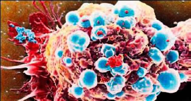 Pankreas kanseri tedavisinde dev adım