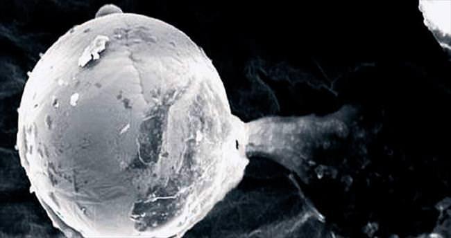 Hayat küreciği uzaylıların işi mi ?