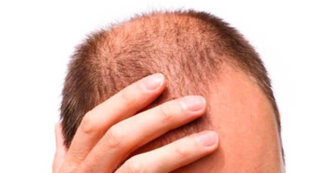 Saç dökülmesine ne iyi gelir?
