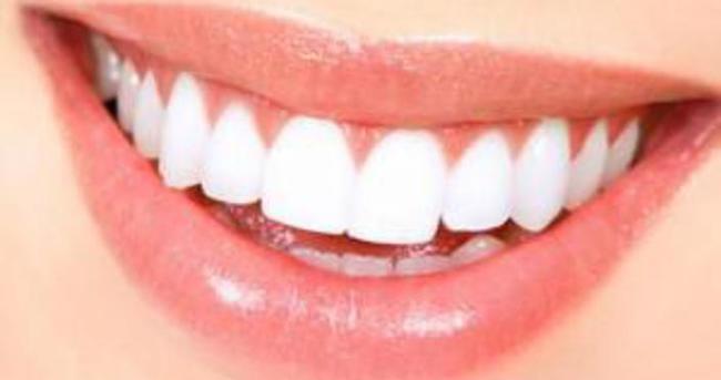Diş iltihabı nasıl geçer?