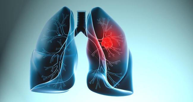 Akciğer kanserine ne iyi gelir?
