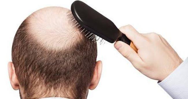 Saç ekimi cildi de koruyor