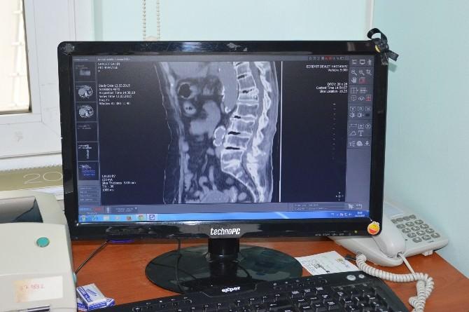 Beli Kıralan 90 Yaşındaki Hastaya Kemik Çimentosu