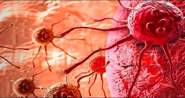 Kanserde girişimsel radyoloji tedavileri