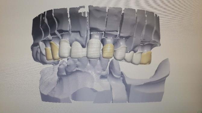 Diş Tedavisinde Bilgisayar Teknolojisi