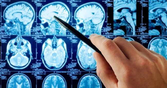 Beyin tümöründe erken teşhise dikkat