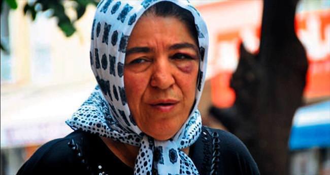 Annesini döven evlada, 1 ay yaklaşmama cezası