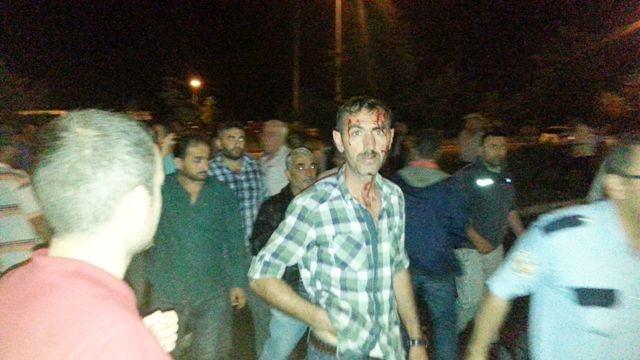 Giresun'da Kamyon Minibüs Durağına Girdi: 1 Yaralı