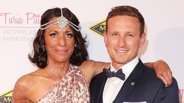 Turia Pitt ve sevgilisi Michael Hoskin nişanlandı