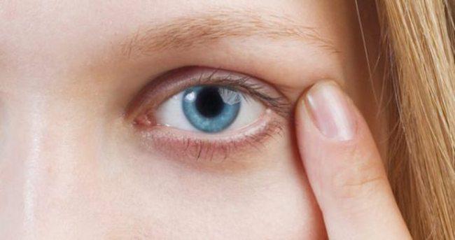 Arpa üst göz kapağında nasıl tedavi edilir