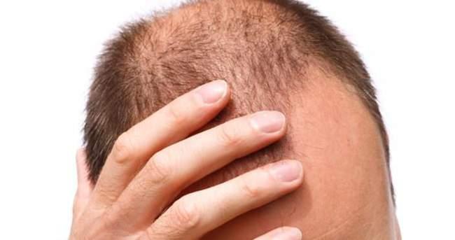 Saç dökülmesinde doğru adres: TIP