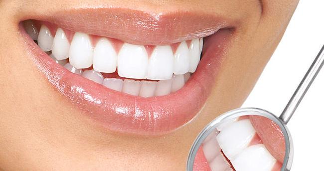 Diş sararması nasıl geçer?