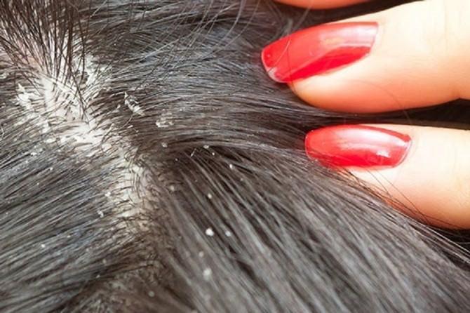 Saçınızı Sık Sık Şampuanlamayın!