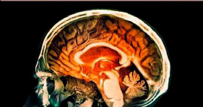 Halüsinasyonun nedeni beyindeki kıvrımlar çıktı