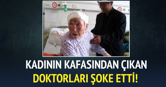 Yaşlı kadın kafasında 64 yıldır bir kurşun taşıyormuş