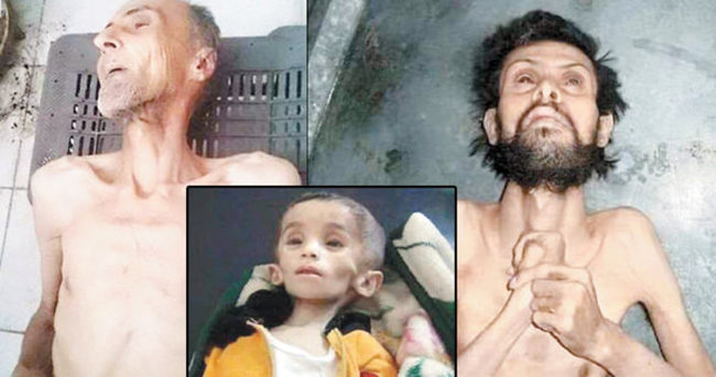 Suriye'de masum insanlar açlıktan ölüyor