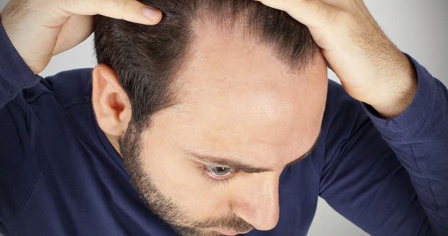 Saç ekimi hakkında bilinmesi gerekenler
