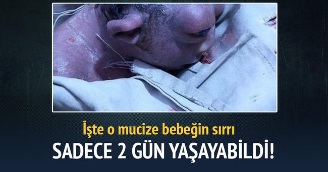 Sıradışı bebek 2 gün hayatta kalabildi!