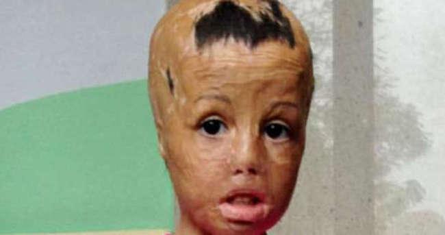 Savaşta yüzü yanan minik Evin'e kalıcı makyajla kaş yapıldı