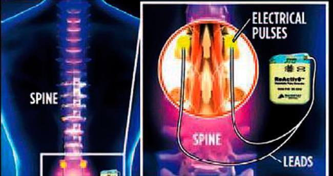 Bel ağrısına son verecek implant