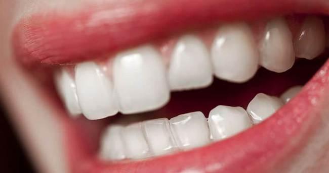 Dişlerin sararması nasıl önlenir?