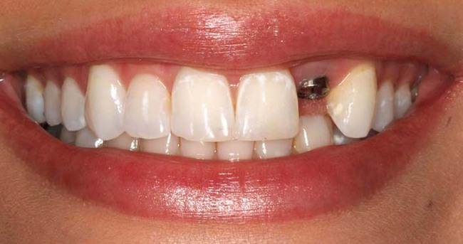 Ucuz diş implantlarına dikkat