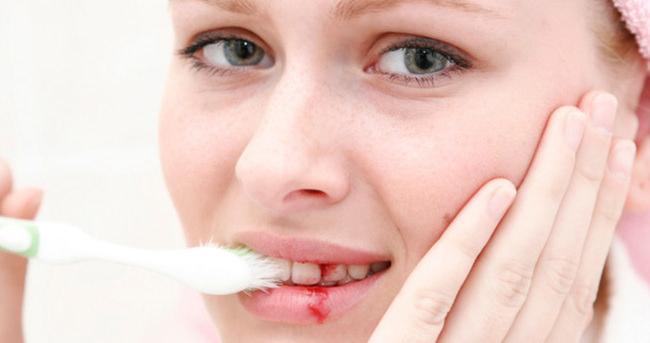 Diş eti kanamasına dikkat