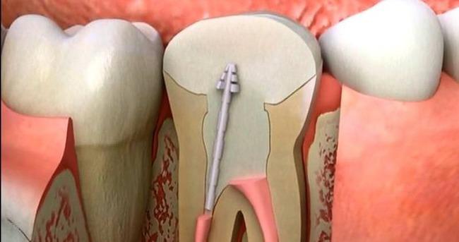 Kanal tedavisi ile dişlerinizi rahatlatın