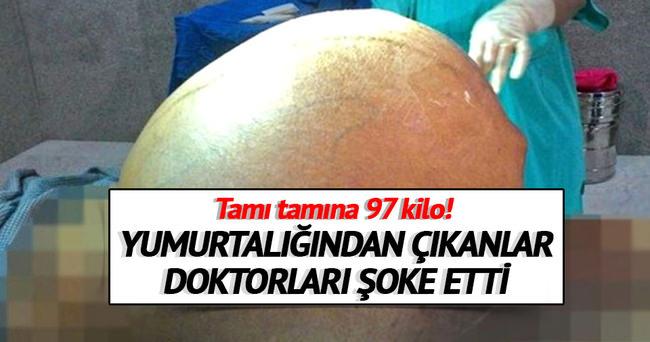 Hintli kadının bedeninden 97 kiloluk tümör çıkarıldı