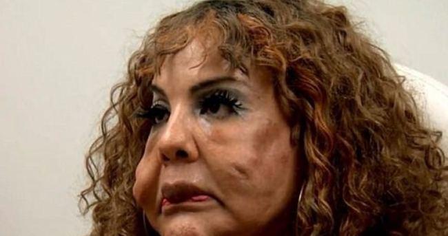 Yüzüne çimento enjekte ettiler!