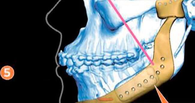 Kanserli çene kemiği için titanyum implant