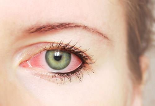 Göz tansiyonunda yeni ilaç