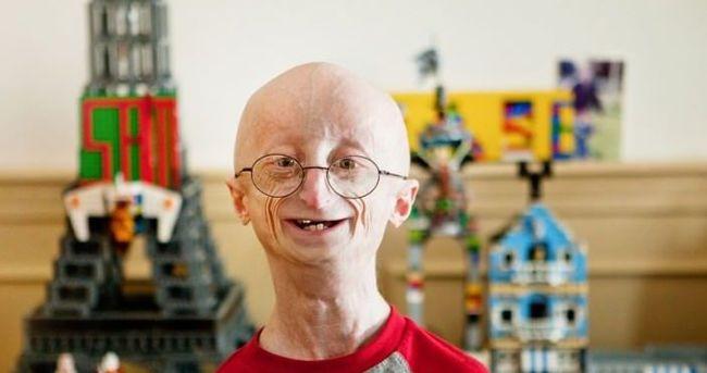 Progeria nedir? Erken yaşlanma hastalığı nedenleri?