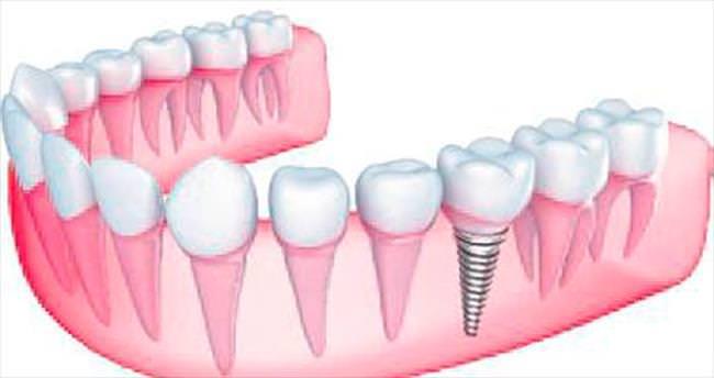 Diş eksikliğinde implant farkı