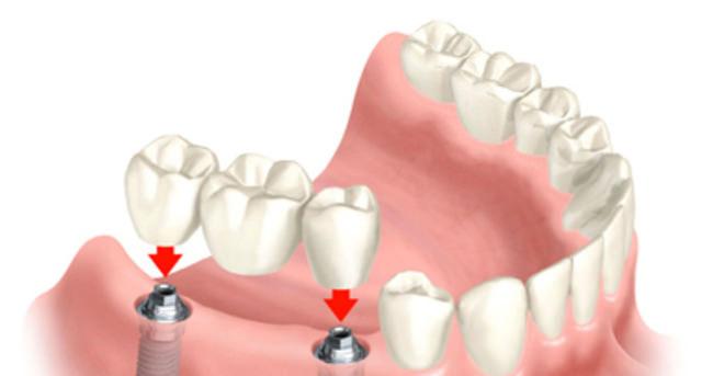 Diş implantı nedir?