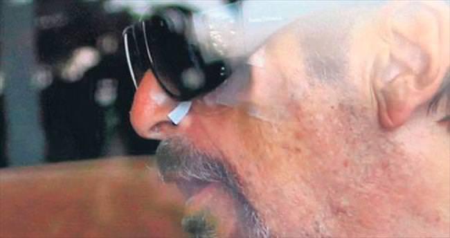 Gözündeki bandajı gözlükle kamufle etti