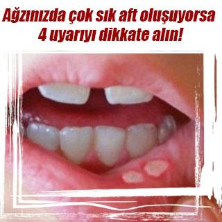 Ağzınızda çok sık aft oluşuyorsa 4 uyarıyı dikkate alın!