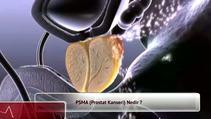 P.S.M.A. Prostat kanseri nedir?