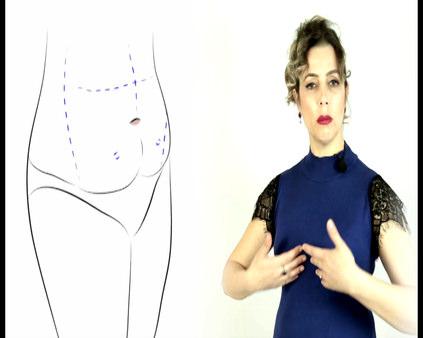Karın germe ve liposuction birlikte yapılabilir mi?